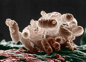 Colorized low-temperature electron micrograph of a cluster of E. coli bacteria